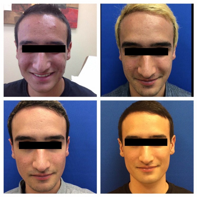 before after acne treatment accutane resurfacing