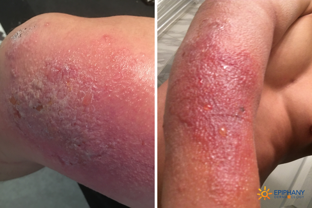 Poison Ivy Treatment Epiphany Dermatology