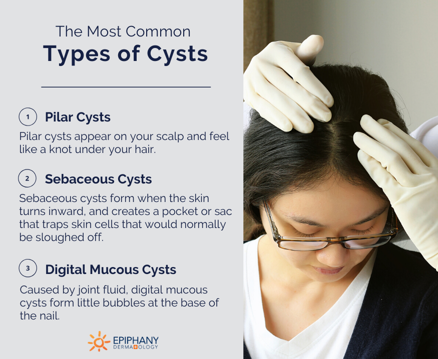 types of cysts