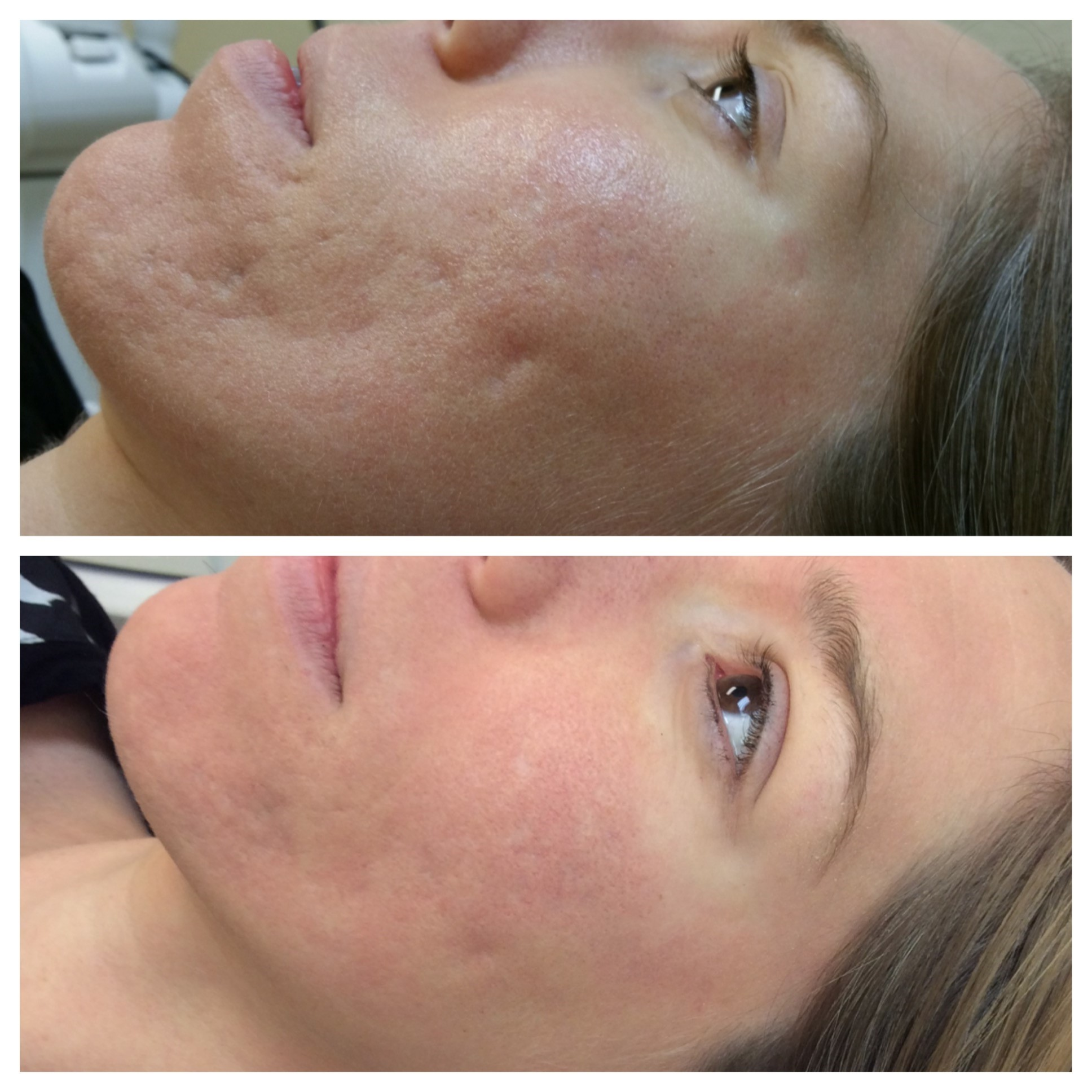 fractional laser before after