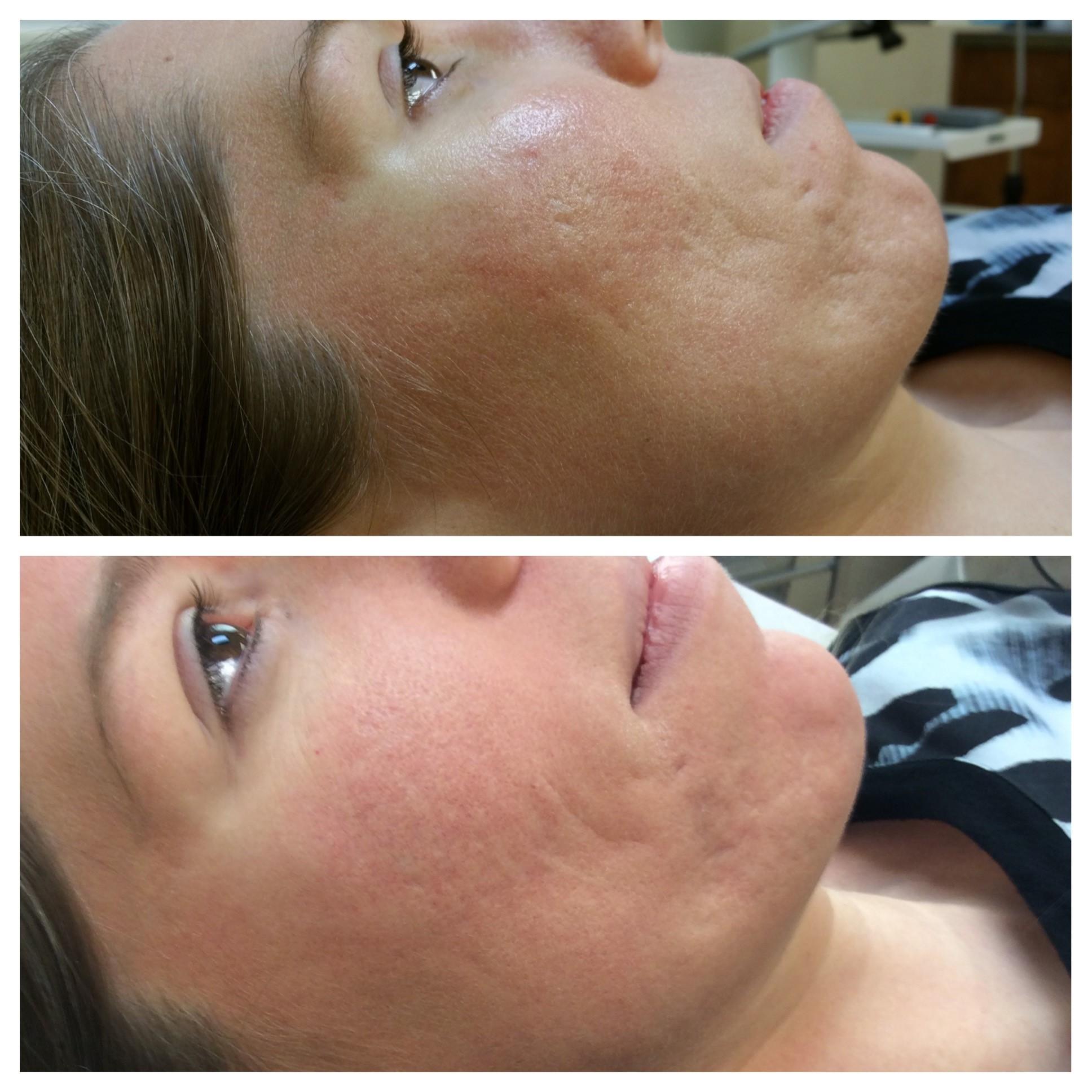 Acne Scarring Archives Epiphany Dermatology