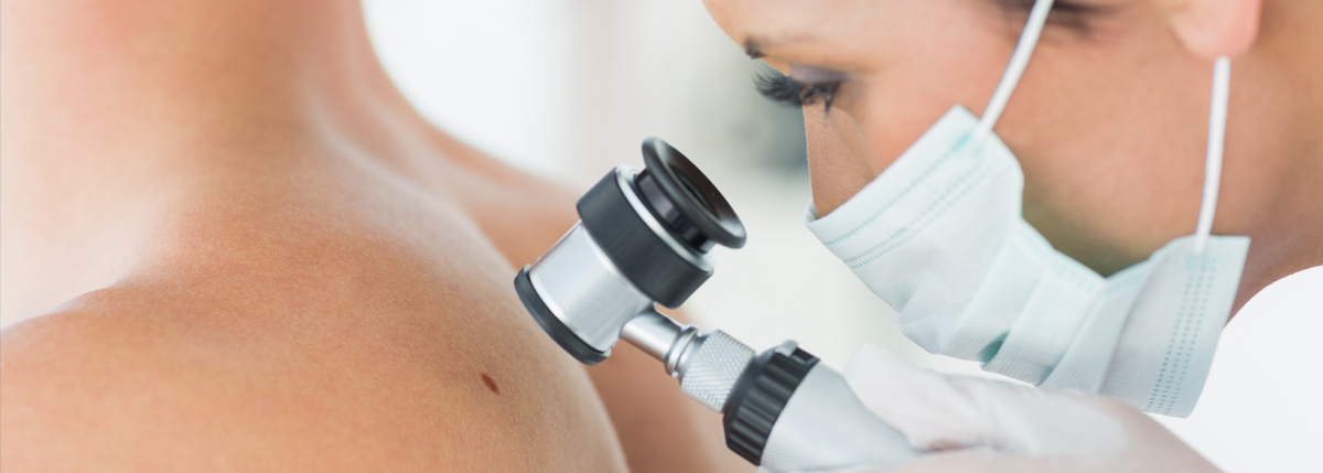 Common Warts Dermatology Services |...