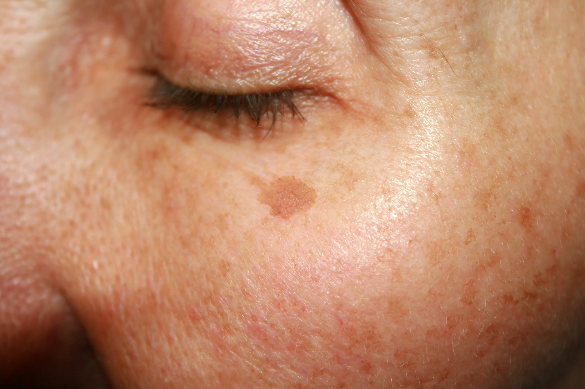 laser treatment for dark spots on the face and body