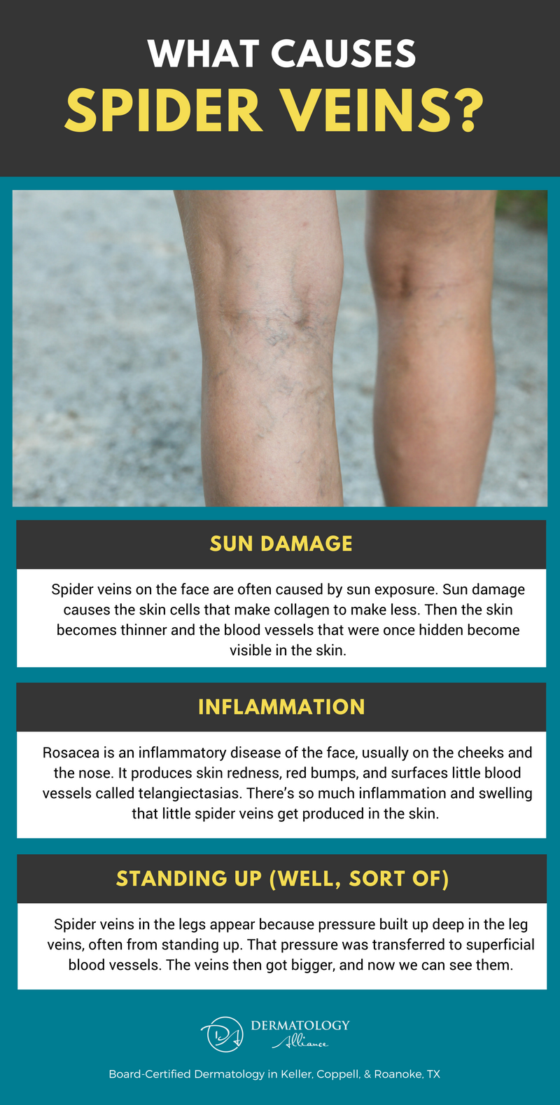 How To Get Rid Of Spider Veins On Your Legs Face Feet
