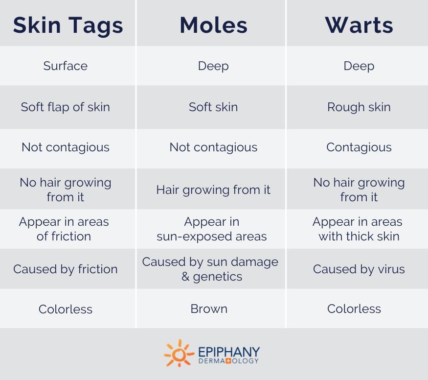 skin tag vs wart vs mole
