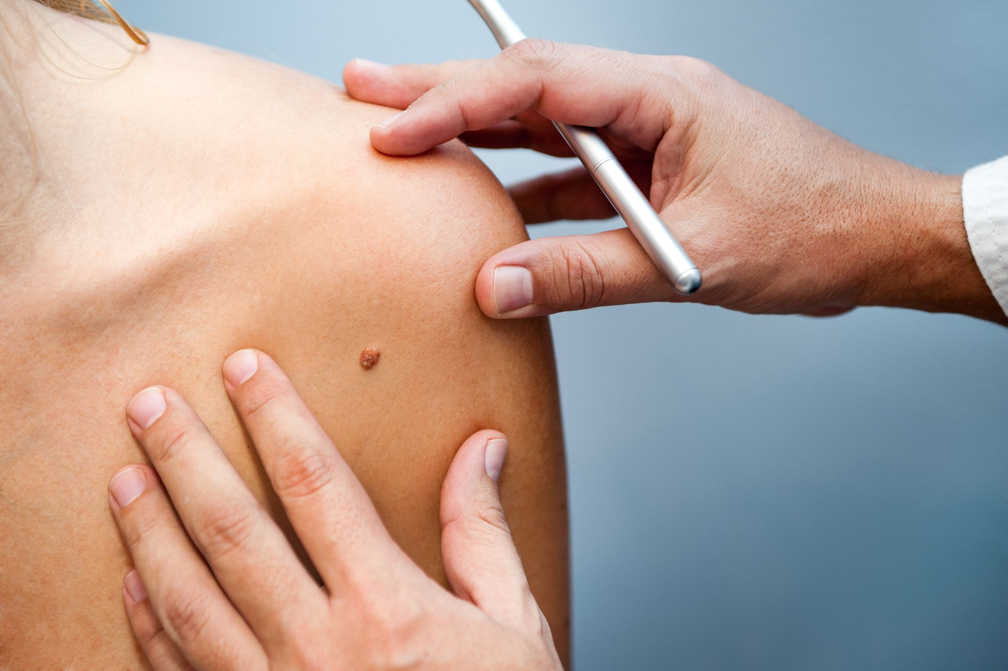 7 Things You Should Know About Free Skin Cancer Screenings