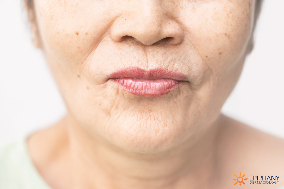 How to Get Rid of Embarrassing Lip Lines Around the Mouth