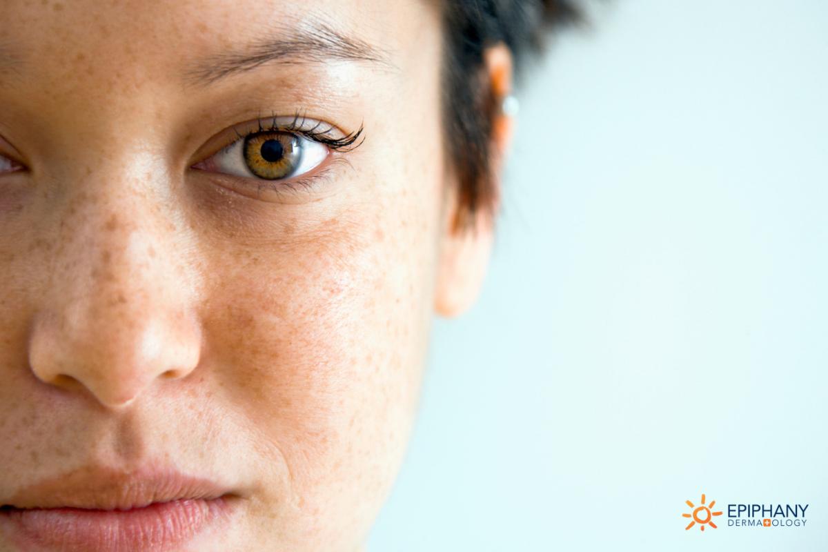 freckles or skin cancer