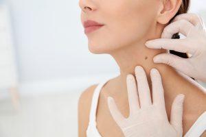 mohs surgery for melanoma