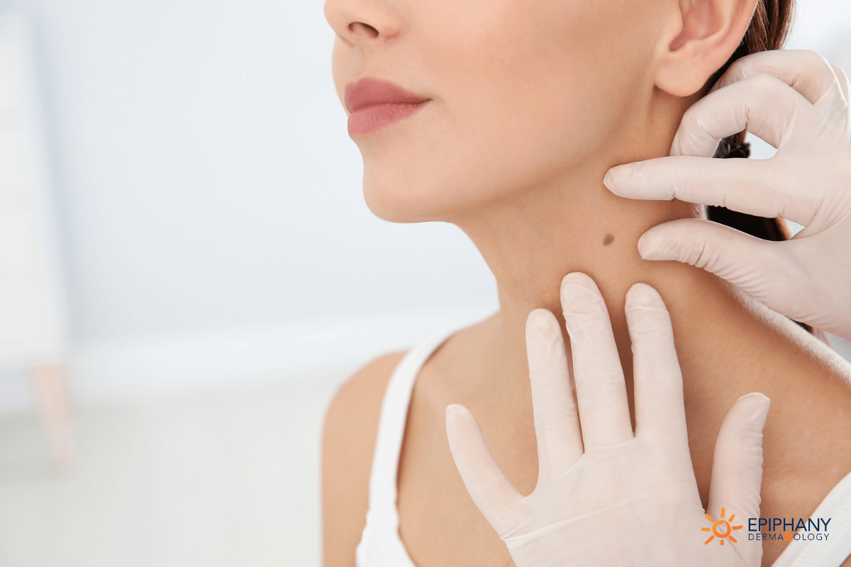 Why Mohs Surgery Is The Standard Of Care For Skin Cancer Treatment