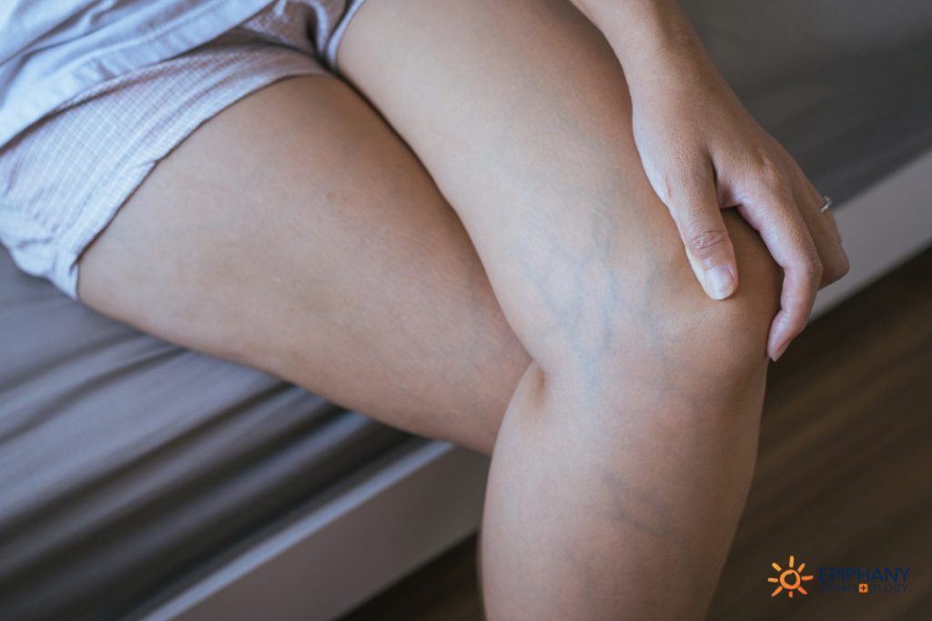 spider-veins-vs-varicose-veins