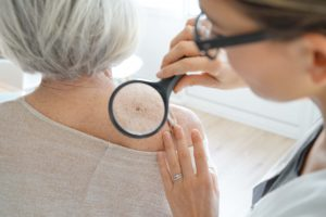 What to expect during yearly skin exam